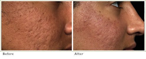 Fraxel™ Laser Treatment for Acne Scars