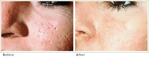 Punch Grafts for Acne Scars