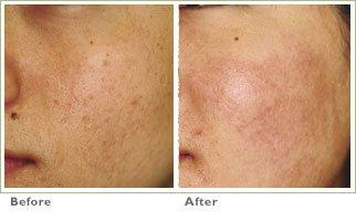 Laser Skin Resurfacing for Acne Scars