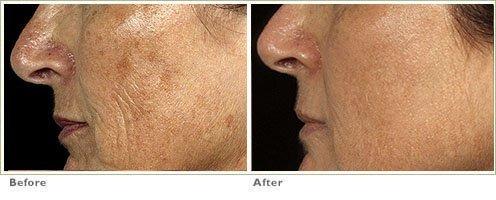 Fraxel™ Laser Treatment