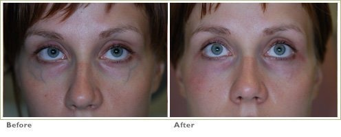 CoolGlide Laser for Blue Veins around the Eyes/Face