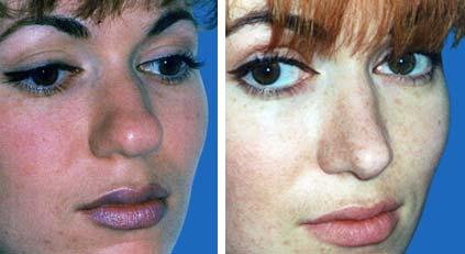 Nose Job / Nasal Surgery