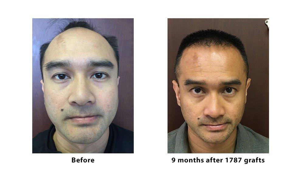 ARTAS Robotic Hair Transplantation (FUE technique)