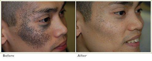 Brown Birthmarks