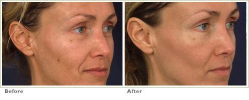 Fraxel™ Laser Treatment for Broken Capillaries & Redness