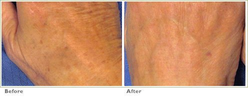 Fraxel™ Laser Treatment for Brown Spots