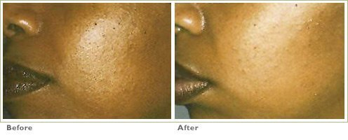 Chemical Peels for Brown Spots
