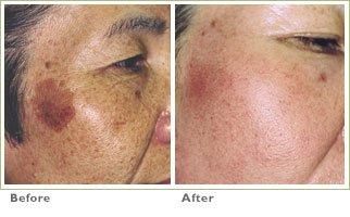 Laser Skin Resurfacing for Brown Spots