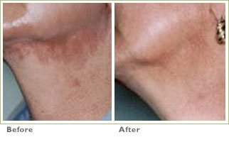 Microdermabrasion for Brown Spots