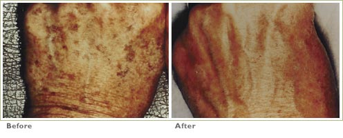 Q-Switched Nd:YAG Laser for Brown Spots