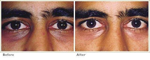 Laser Skin Resurfacing for Dark Circles Under the Eyes