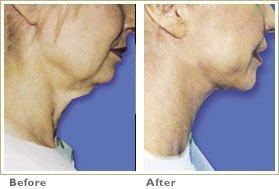 Facial/Neck Contouring