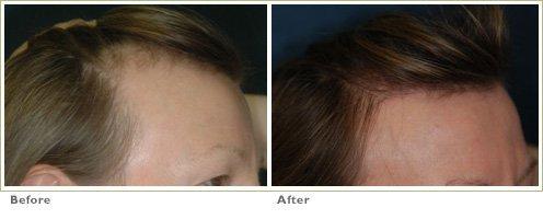 Strip Harvest Hair Transplantation (FUT technique)