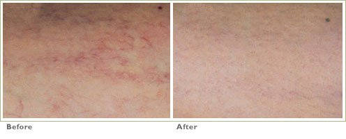 Laser Sclerotherapy