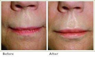 Radiesse for Lips