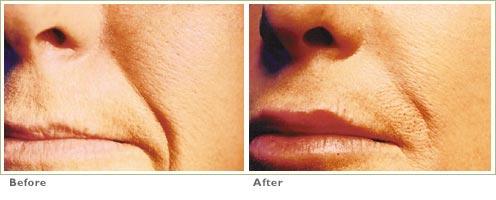Restylane & Perlane for Lip Enhancement