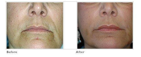 Fat Transfer for Lip Enhancement