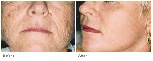Laser Skin Resurfacing for Precancers/Actinic Keratoses