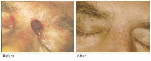 Photodynamic Therapy for Precancers/Actinic Keratoses