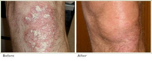 Excimer Laser for Psoriasis