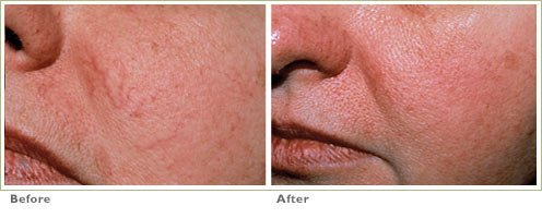 Blu-B-Gone Laser for Broken Capillaries/Redness