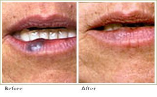 V Beam for Broken Capillaries/Redness