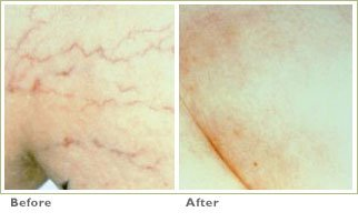 Traditional Sclerotherapy