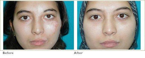 Excimer Laser for Vitiligo