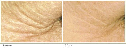 Chemical Peels for Wrinkles & Aging