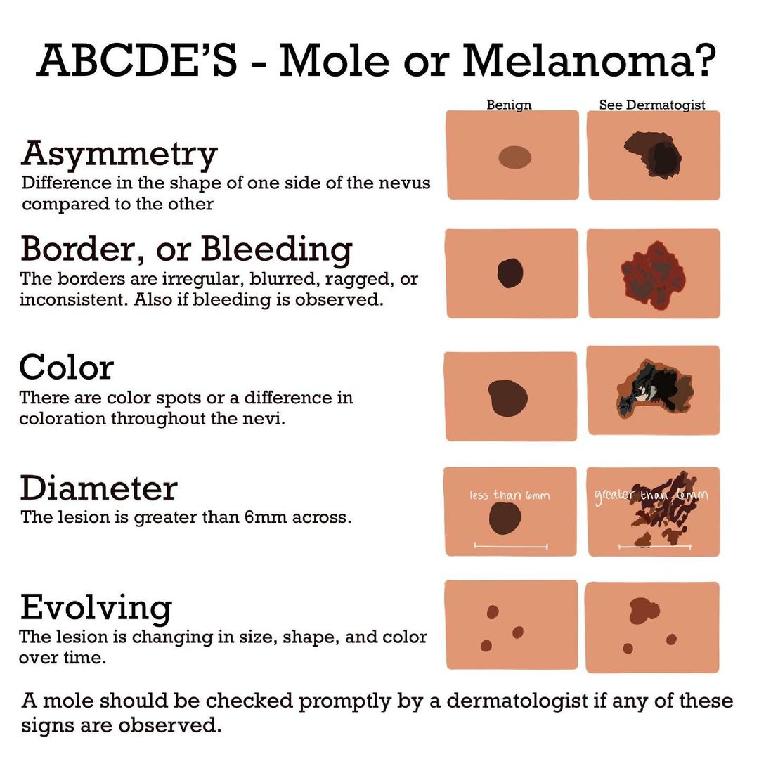 abcde melanoma
